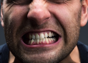 Causes-of-Sensitive-Teeth-300x213 Learning the Causes of Sensitive Teeth