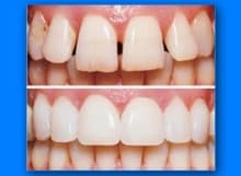 cosmetic-dentistry-220x161 Dental Services