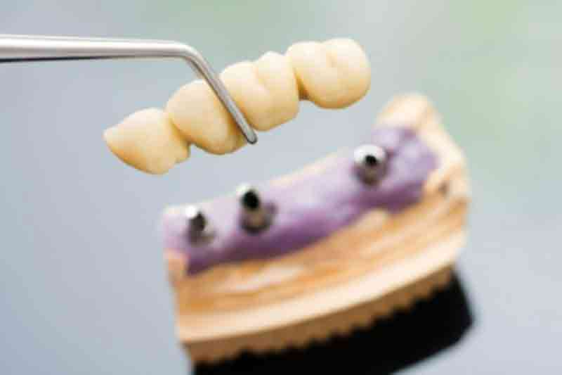crown-and-bridge-dental Tooth Replacement: Which Option Is Right For You?