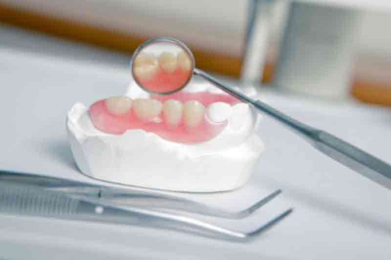 dentures-guelph-dentist Tooth Replacement: Which Option Is Right For You?