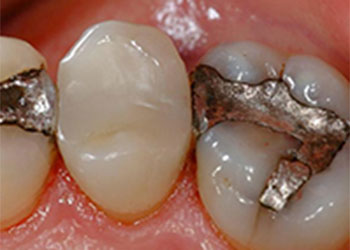 fillings Things You Need to Know About Composite Resin Dental Fillings