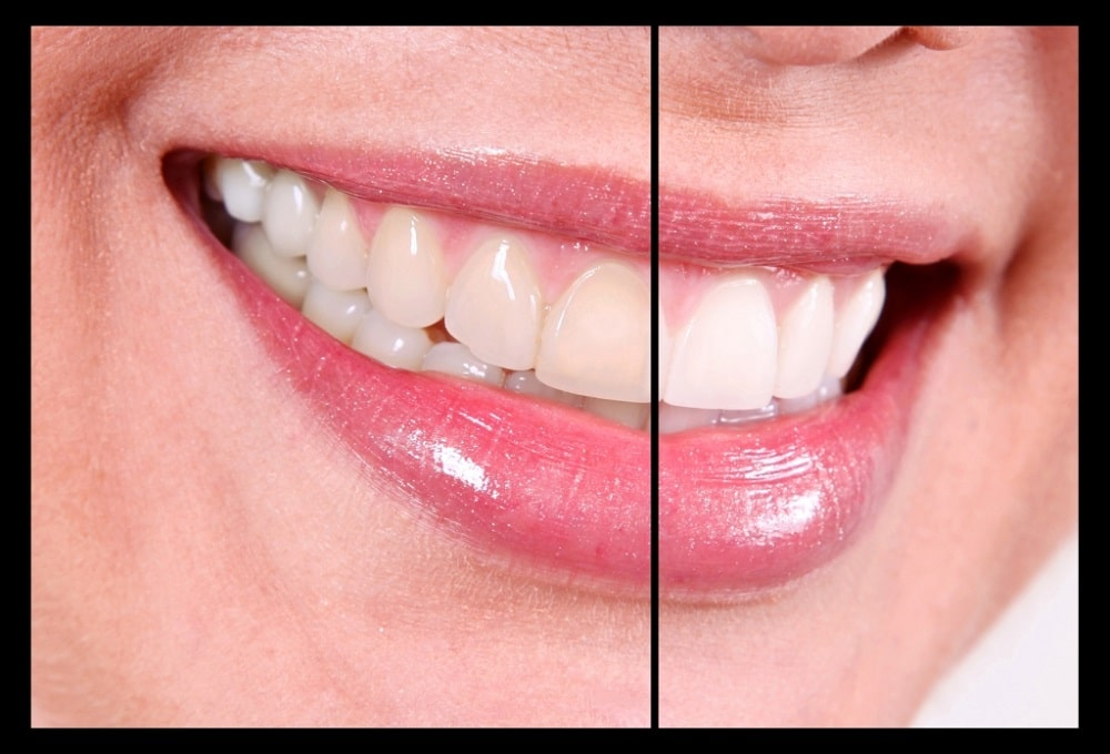 Signs-Youre-Approaching-Teeth-Whitening-the-Wrong-Way-1024x697 Lifetime Teeth Whitening Program
