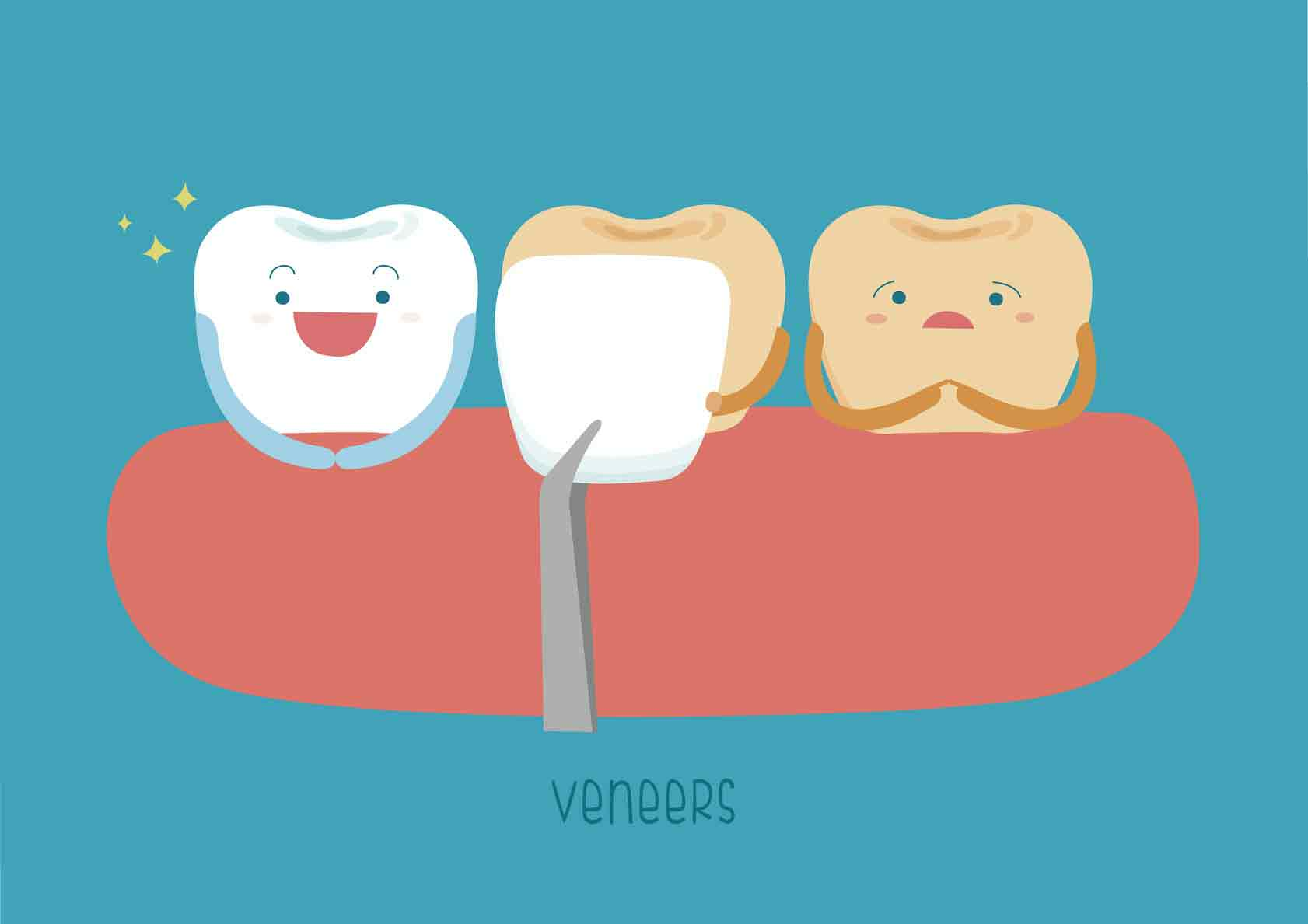 Understanding Dental Veneers