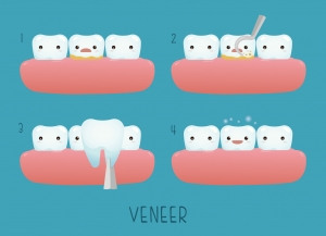 Understanding-Dental-Veneers1-300x217 Understanding Dental Veneers