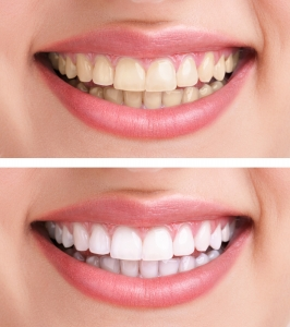 teeth-whitening-266x300 Lifetime Teeth Whitening Program
