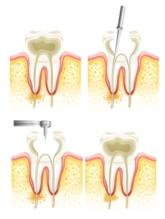 A Crash Course on Root Canal Therapy