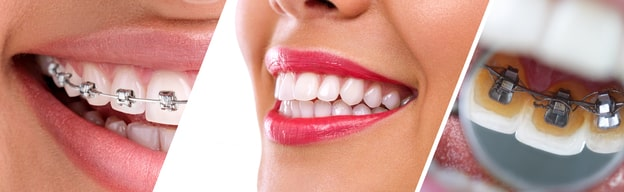 Braces-Care-101-Caring-for-your-Teeth-and-Braces Malocclusion, Its Causes, Effects, and Treatment, and How Braces Can Help