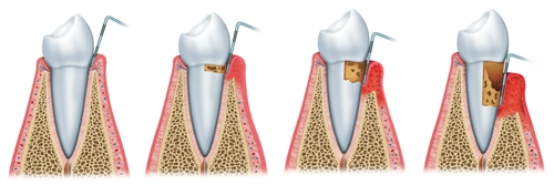 Development-of-periodontitis Facts Everyone Should Know About Periodontal Disease
