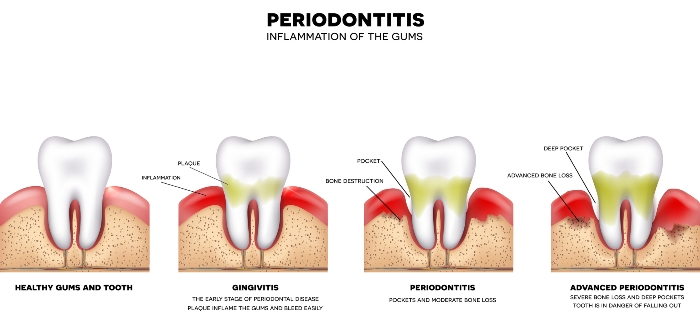 Periodontitis-inflammation-of-the-gums-gingivitis Facts Everyone Should Know About Periodontal Disease