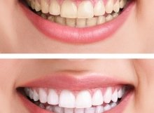 teeth-whitening-220x161 Dental Services