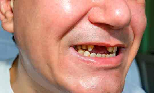 man-teeth-loss Adult Diabetes Causes The Loss of Twice As Many Teeth