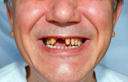 man-with-missing-teeth Facts about the Dangers of Missing Teeth