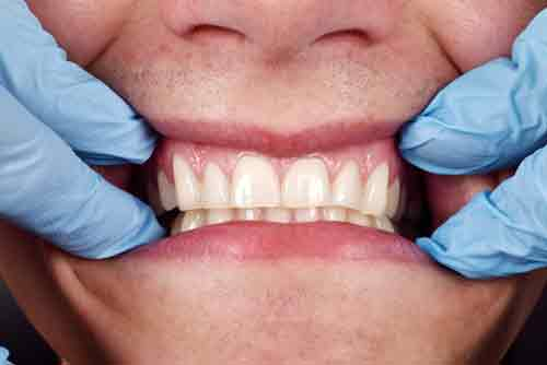 Dentist-shows-a-patients-teeth-and-Healthy-gums Tooth Replacement: Which Option Is Right For You?