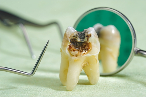 Cavities-on-tooth Dental Health For Older Adults