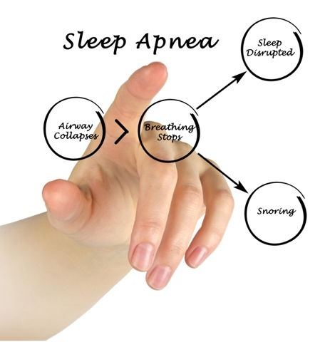 Sleep Apnea Symptoms And Treatment Options