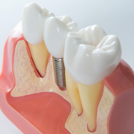 The-Exciting-Truth-About-Dental-Implants Tooth Replacement: Which Option Is Right For You?