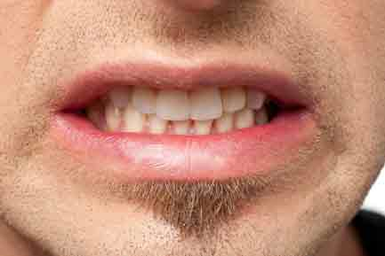 TMJ-Syndrome-grinding-the-teeth What To Do About a Loose Tooth