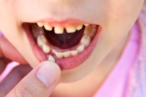 What To Do About a Loose Tooth