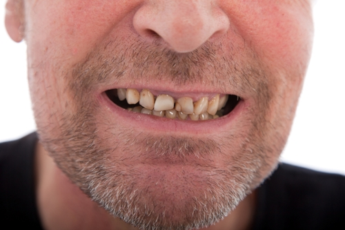 What Causes Teeth Stains?