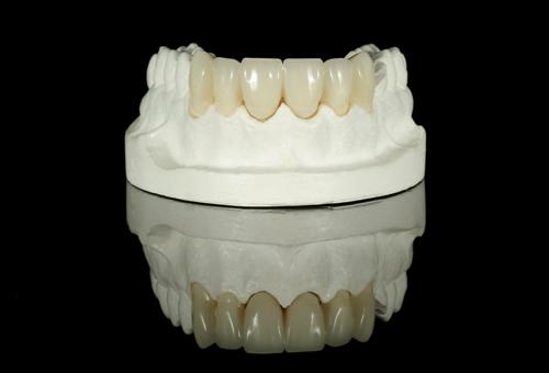 Dental-Bridge-on-a-model-teeth Why Consider a Dental Bridge?