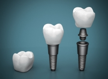 Dental-Implants-Guelph-Dentist-220x161 Home