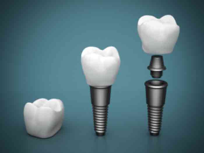 Dental-Implants-Guelph-Dentist Home