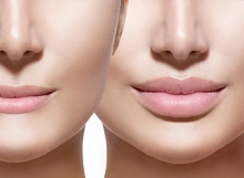 Dermal-lip-filler-injections-220x161 Home