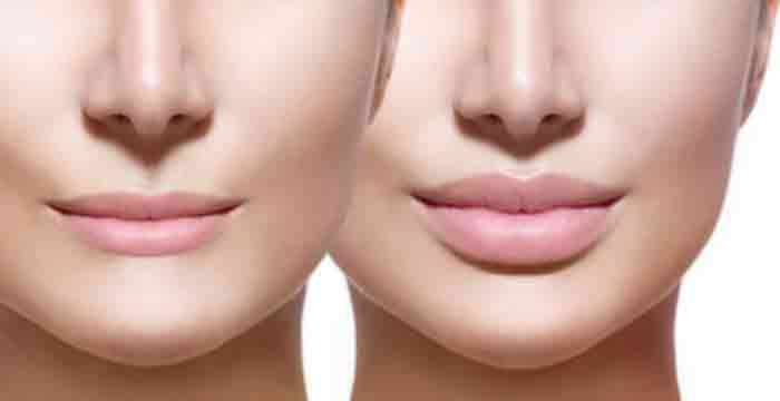 Dermal-lip-filler-injections Home