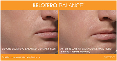 belotero-balance Lip Fillers