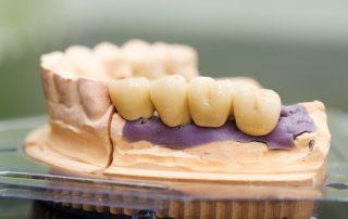 Types of Dental Bridges